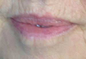 Happens. facial lip swelling variant
