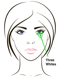 Sanpaku--White Sclera shows on Threes Sides of Colored Iris