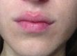 Lips Reveal Acid Indigestion and Heartburn