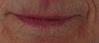 Top Lip Irregularities Suggest GERD