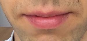Normal Colored Skin above Lip