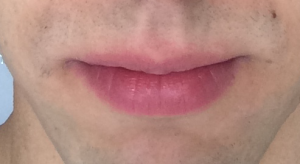 Pink Skin above Central Portion of Lip