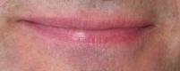 Indistinct Upper Lip Border and Pink Skin Indicate Heartburn