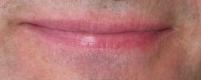 Indistinct Upper Lip Border and Pink Skin Indicate Heartburn