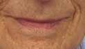 Normal Skin Color above Lip