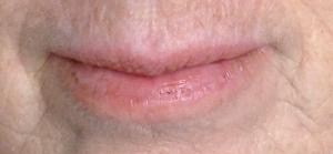 Lips Before Diet Change