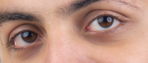 Under Eye Discoloration